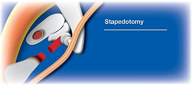 stapedotomy_s
